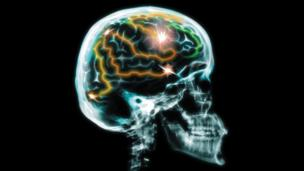 Best of the web: Brain switches and bad drugs