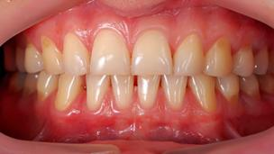 Does age damage your gums?