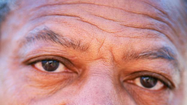 Is black skin less likely to wrinkle?