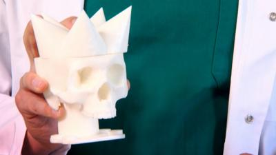 Operation Ouch! - What would happen if we had spiky skulls?