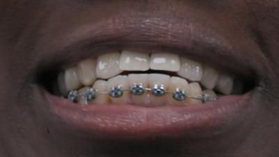 Operation Ouch! - Dr Ronx gets braces!