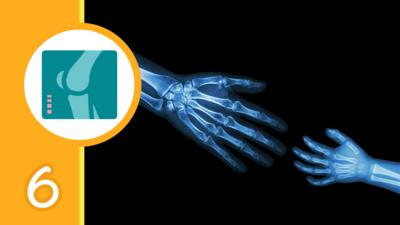 An X Ray of an adult handing reaching out to a child's hand and a graphic of an X-ray