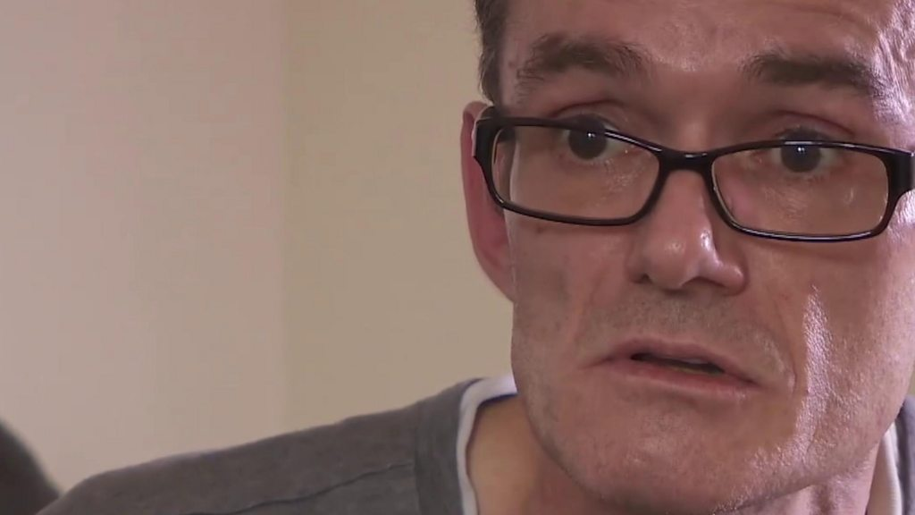 Lancashire Man Performs Diy Operation On Himself To Remove Suture