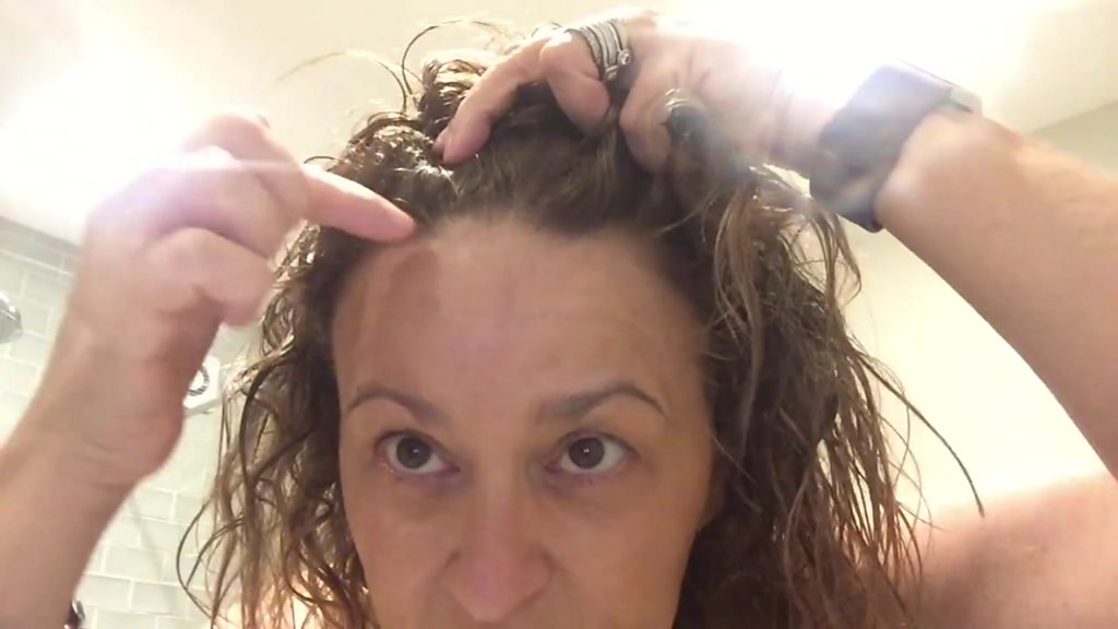 Hair Loss What Is Female Pattern Baldness Bbc News