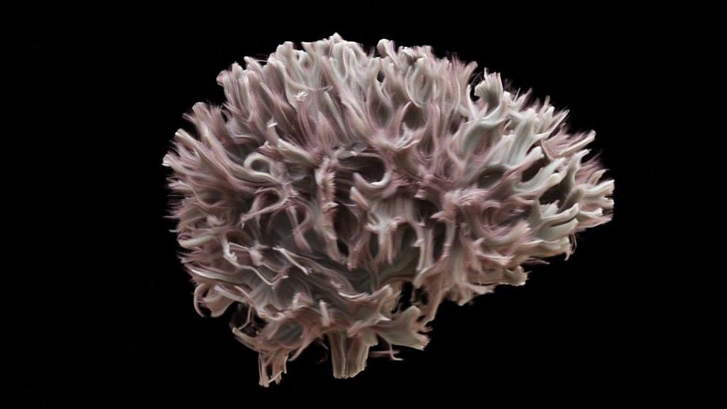 What the brain's wiring looks like