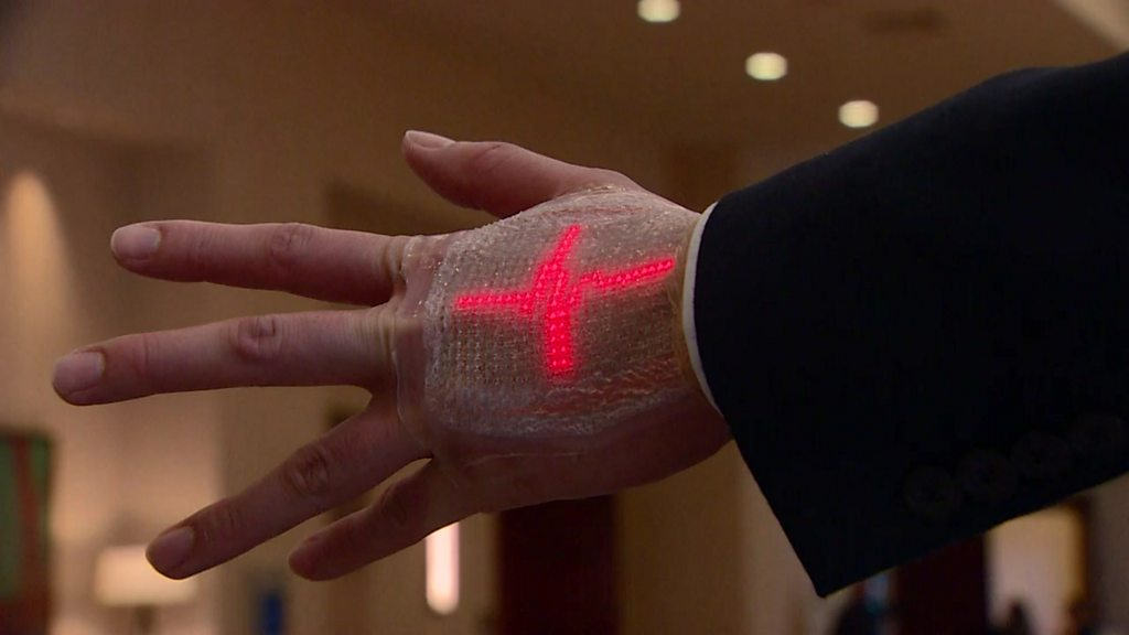 Wearable tech aids stroke patients