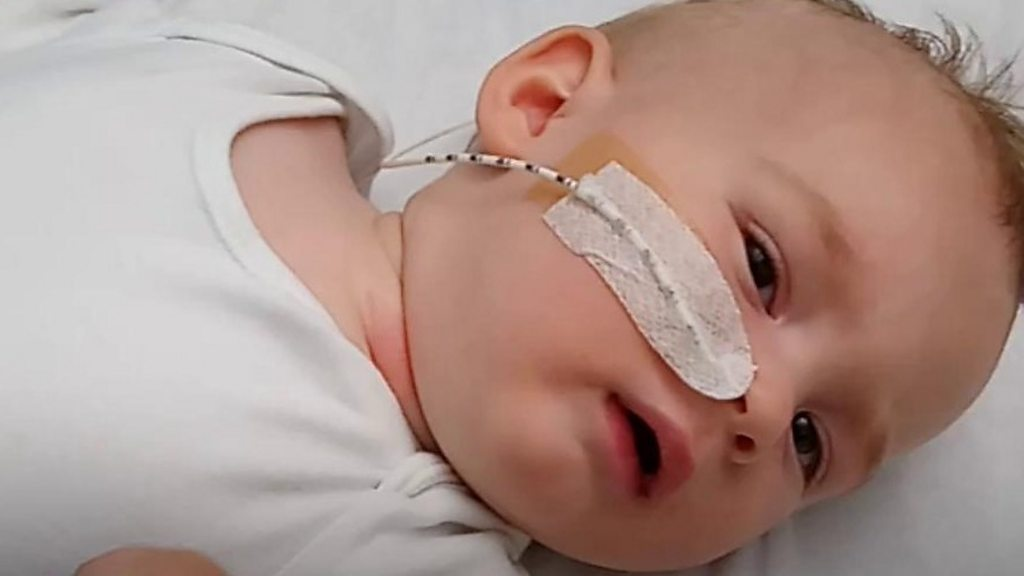 New test for suspected genetic illness children