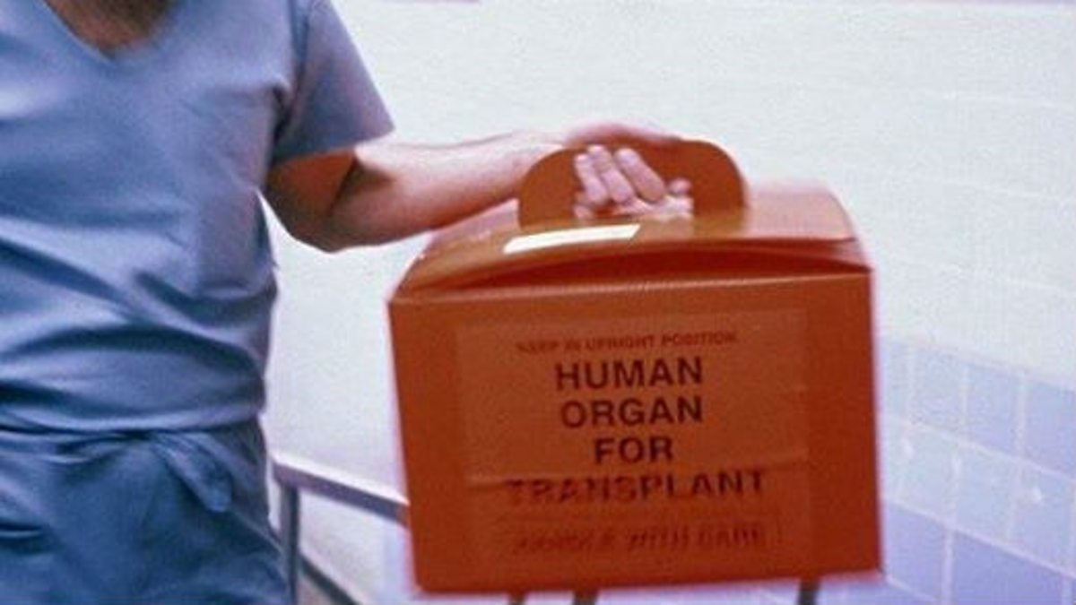 organ donation compensation essay