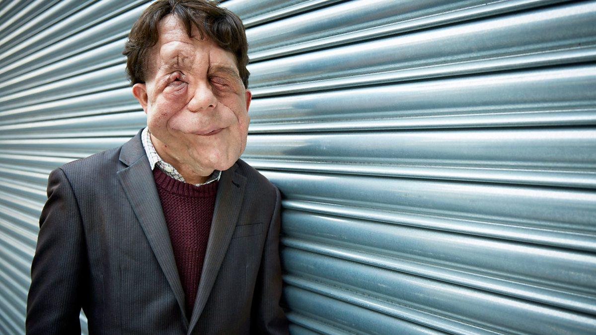 deformed face man - 1200×675