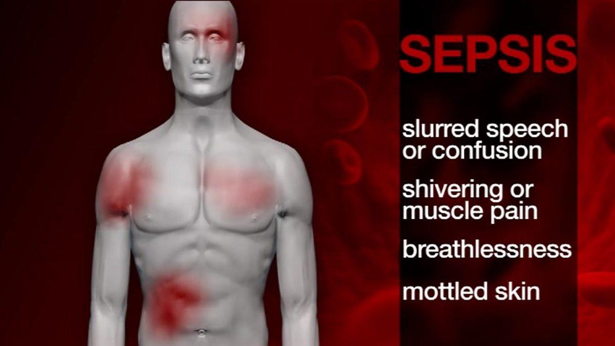 slurred speech causes - 1200×675
