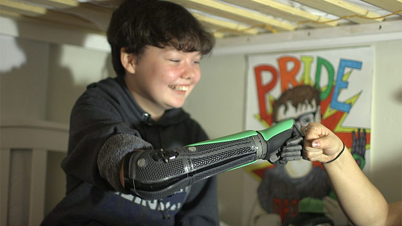 Bionic 3D-printed arm 'gives confidence' to young amputees