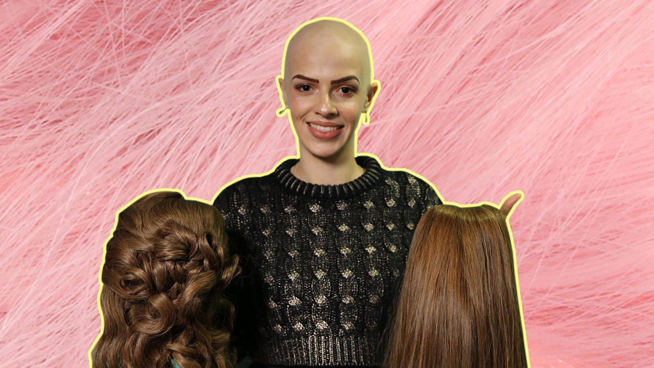 Alopecia: I lost my hair aged one