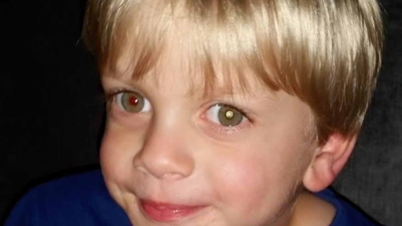 Boy's rare eye cancer spotted in photograph