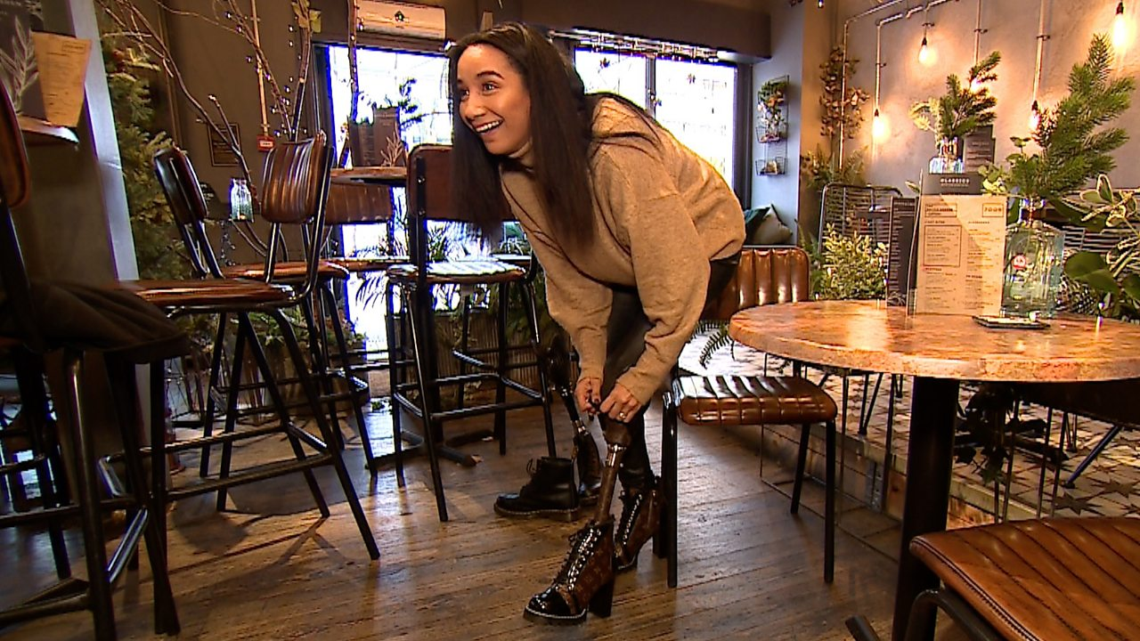 Sian Green-Lord has prosthetic leg made from Louis Vuitton bag