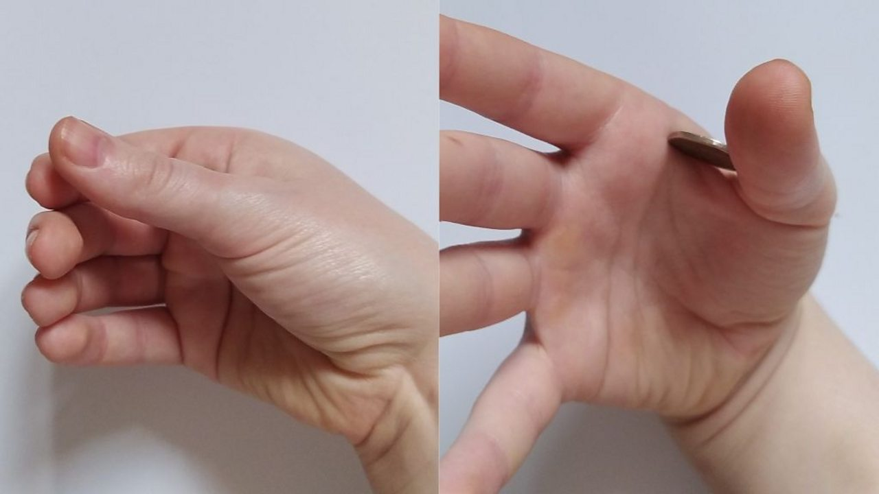 A split image, on the left is a curled hand and on the right is the front view of the hand where a coin is resting in between the thumb and forefinger.