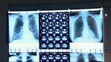 Tackling drug-resistant TB in London