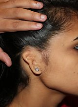 3D printed ears for disfigured children