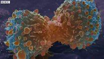 がん発症の最大要因、不運ではなく環境・習慣と 最新研究