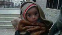 シリア内戦 包囲の街で住民餓死と