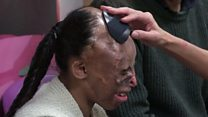 Badly burnt girl given special wig