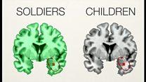 虐待受けた子どもとPTSD兵士の脳が類似=研究