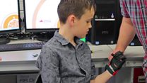 3D printed hand for Northants boy