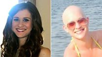 Student's shock at hair loss condition