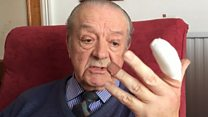 An 82-year-old man who was bitten by a poisonous spider will have part of his finger amputated.