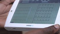 Cameroon tablet monitors heart diseases