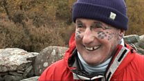 Leopard Man of Skye dies in Inverness