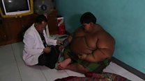 Mãe relata luta de filho de 10 anos e 188 kg que não vai à escola por que não consegue andar