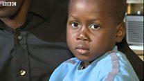 Boy born with organs outside body
