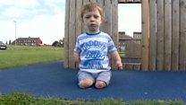 Plea from mum of boy who lost limbs