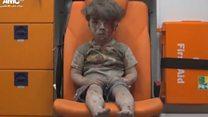 Suriye'deki savaşın dehşeti Ümran'ın gözlerinde
