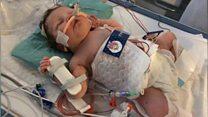 The 'fridge suit' that saved newborn