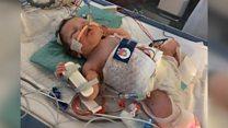 'Fridge suit' saved baby