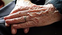 Multi-million pound Alzheimer's study announced