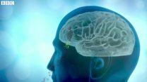大気汚染物質が脳に 認知症に関係か