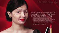 Решма Куреши: модель с обоженным кислотой лицом