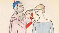 Atalarımız neden kafatasını deliyordu?