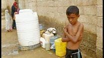イエメン内戦で飢える子供たち 熱と下痢で死に至る子も