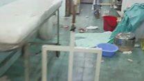 Brain surgery on Aleppo hospital floor