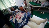 یمن پر حملہ