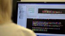 تلاش دانشمندان بریتانیایی برای یافتن ژن آکرومگالی