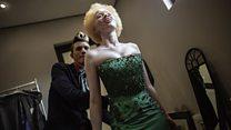 concours de beauté pour albinos