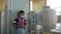 ریه های سیصد میلیون کودک، در معرض هوای آلوده
