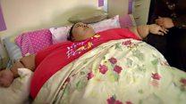 لم تخرج من منزلها لمدة 25 عاما بسبب وزنها