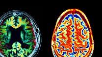 अलज़ाइमर्स से ख़तरा