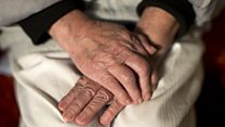 How can home care for dementia patients improve?