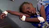 UN warns of cholera outbreak in Yemen